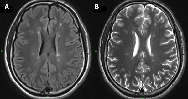 sinapse image of the month mri incidental findings sinapse