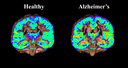 Atlas of older brains could help diagnosis of Alzheimer's disease